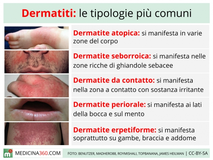 Crema emolienta varicoasă eczeme