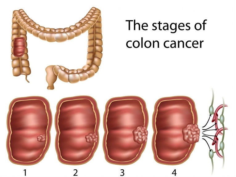 colorectal cancer early)