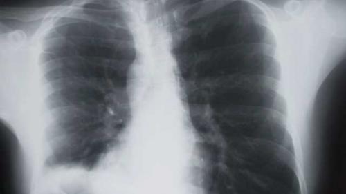 5 cauze ale cancerului pulmonar la nefumători | asspub.ro
