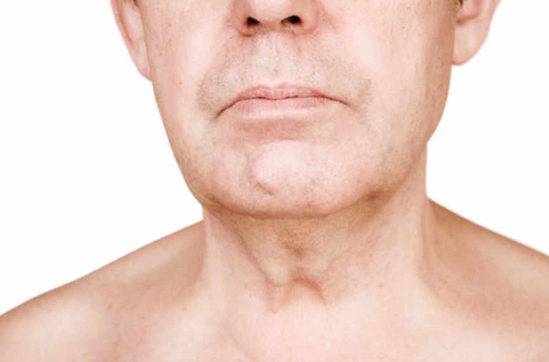papillomavirus glandes salivaires