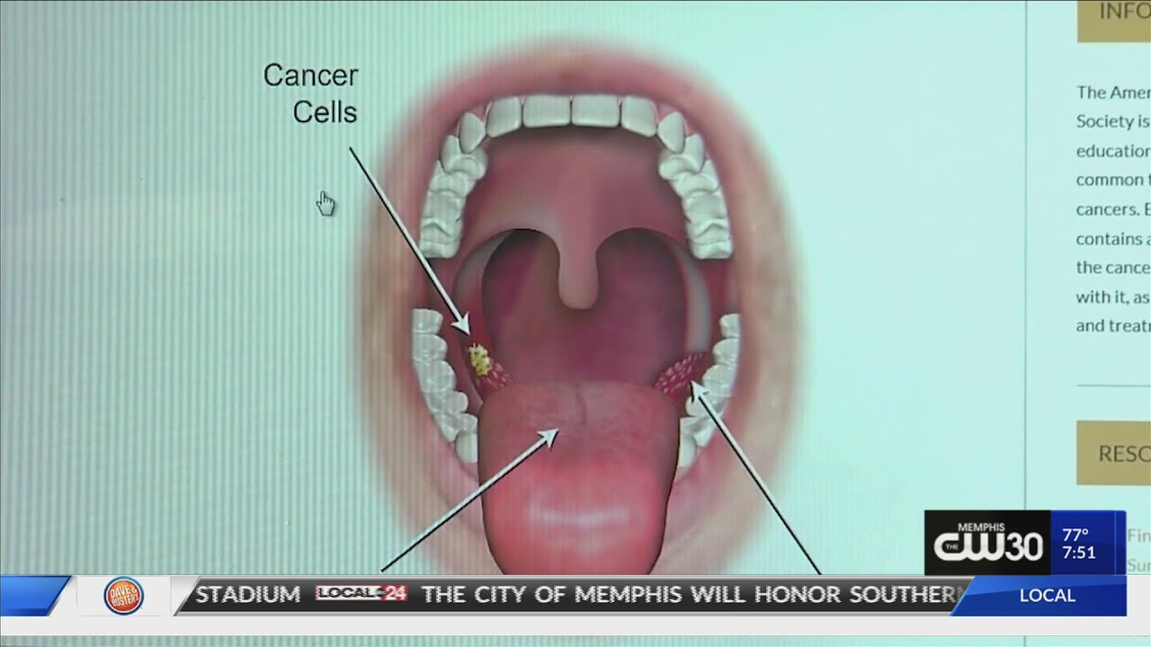 hpv in throat test)