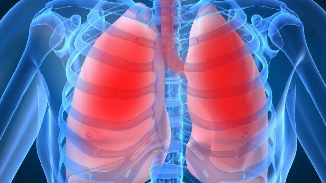 se trateaza cancerul pulmonar)