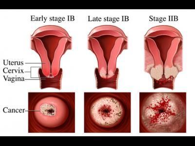 cancer de col uterin herpes)
