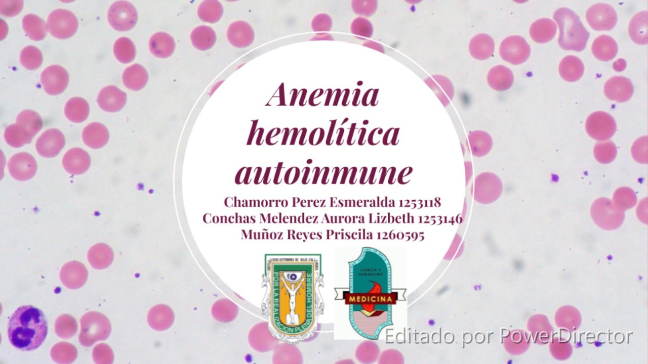anemie hemolitica tratamiento de oxiuros en bebes