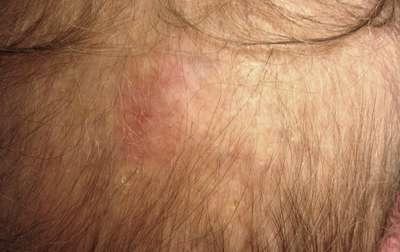 vindecarea cancerului de piele