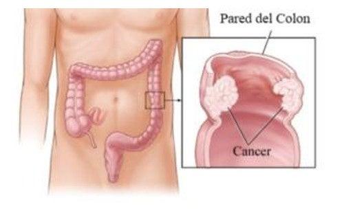 intestinal - Traducción al español - ejemplos rumano | Reverso Context