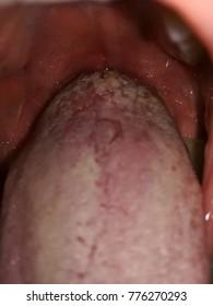 wart tongue white