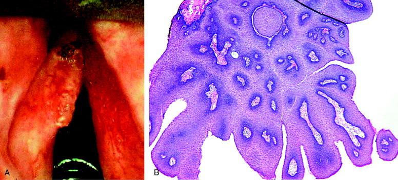 laryngeal papilloma biopsy