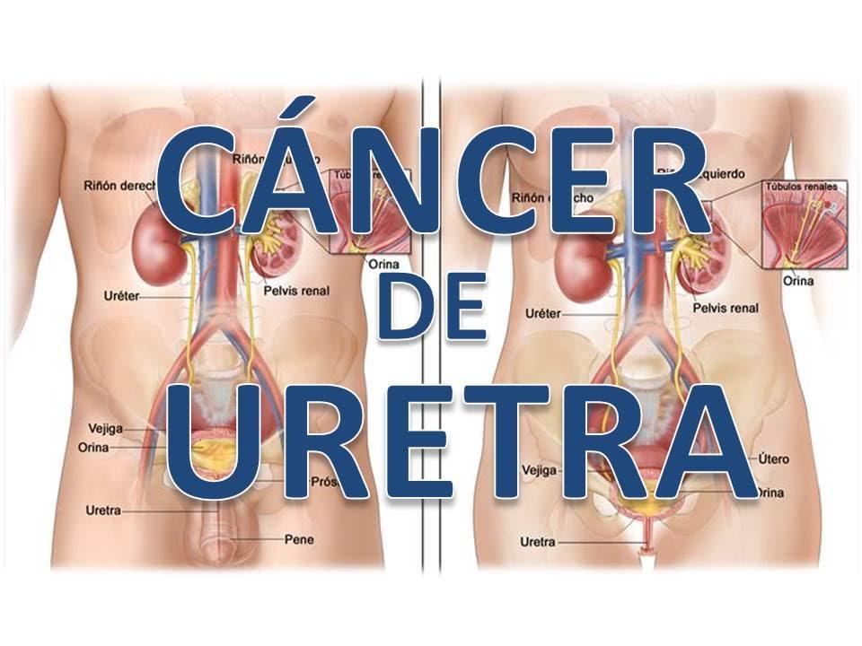 cancer de uretra hombre sintomas cancer la gat chimioterapie
