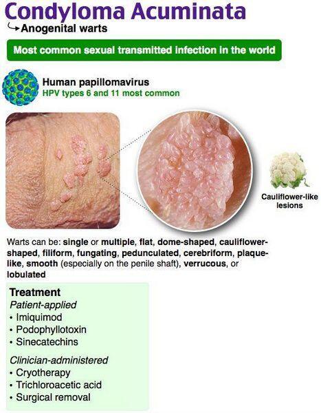 condyloma acuminata treatment