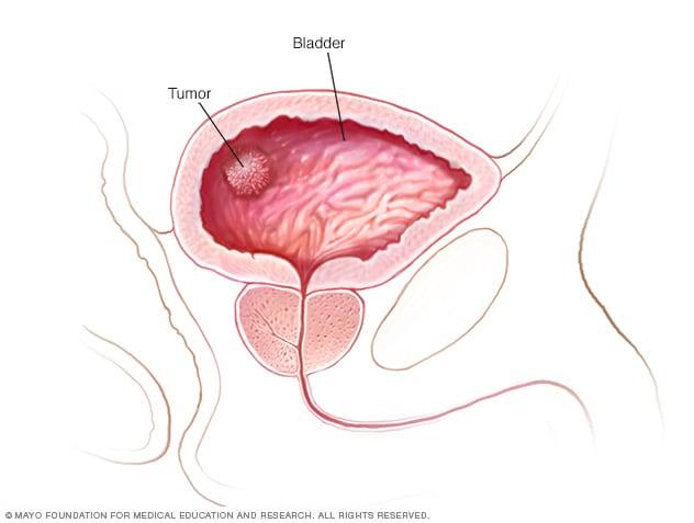 bladder warts symptoms