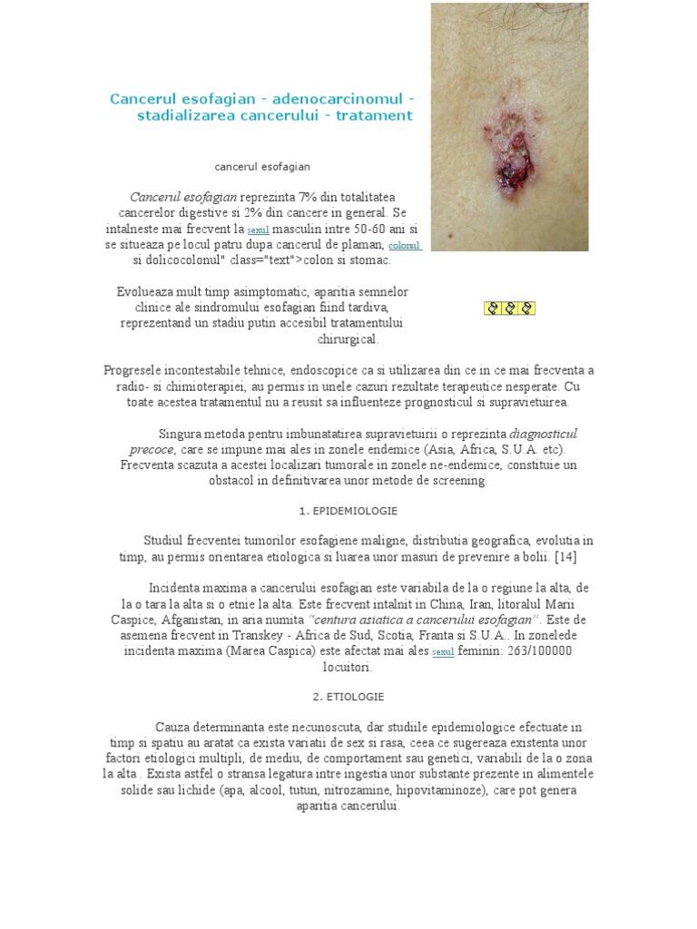 Din ce cauze apare cancerul esofagian | asspub.ro