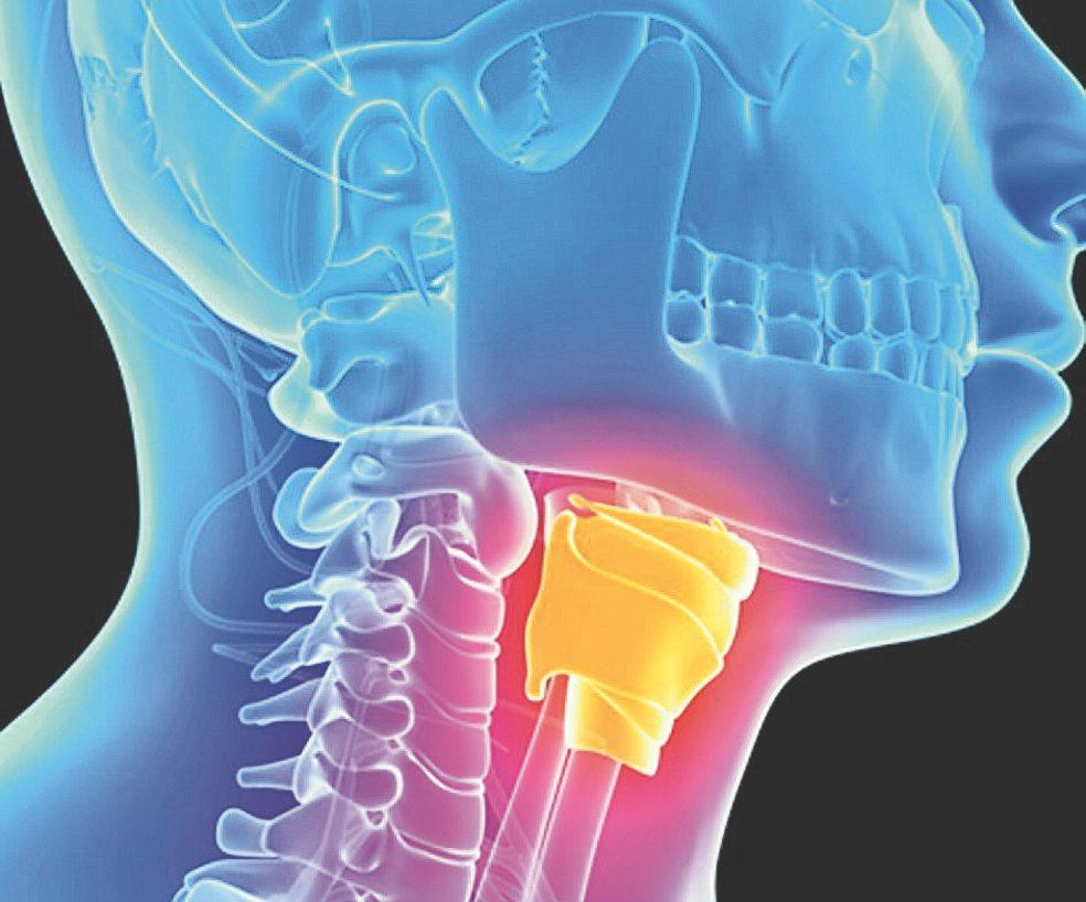 cancer na faringe e laringe
