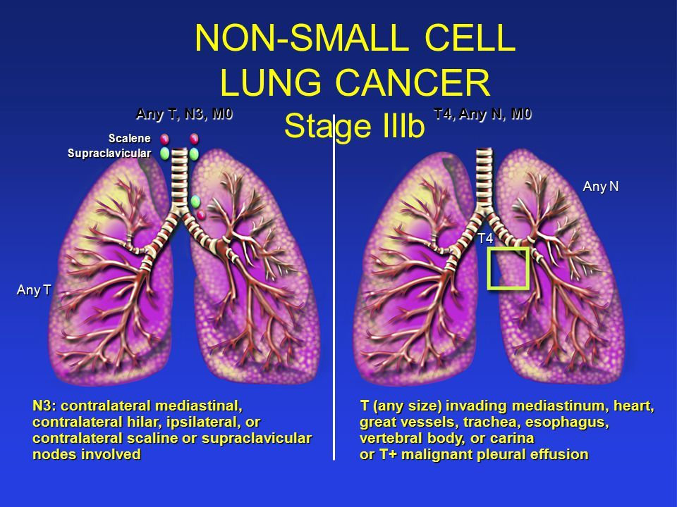 cancer pulmonar nsclc