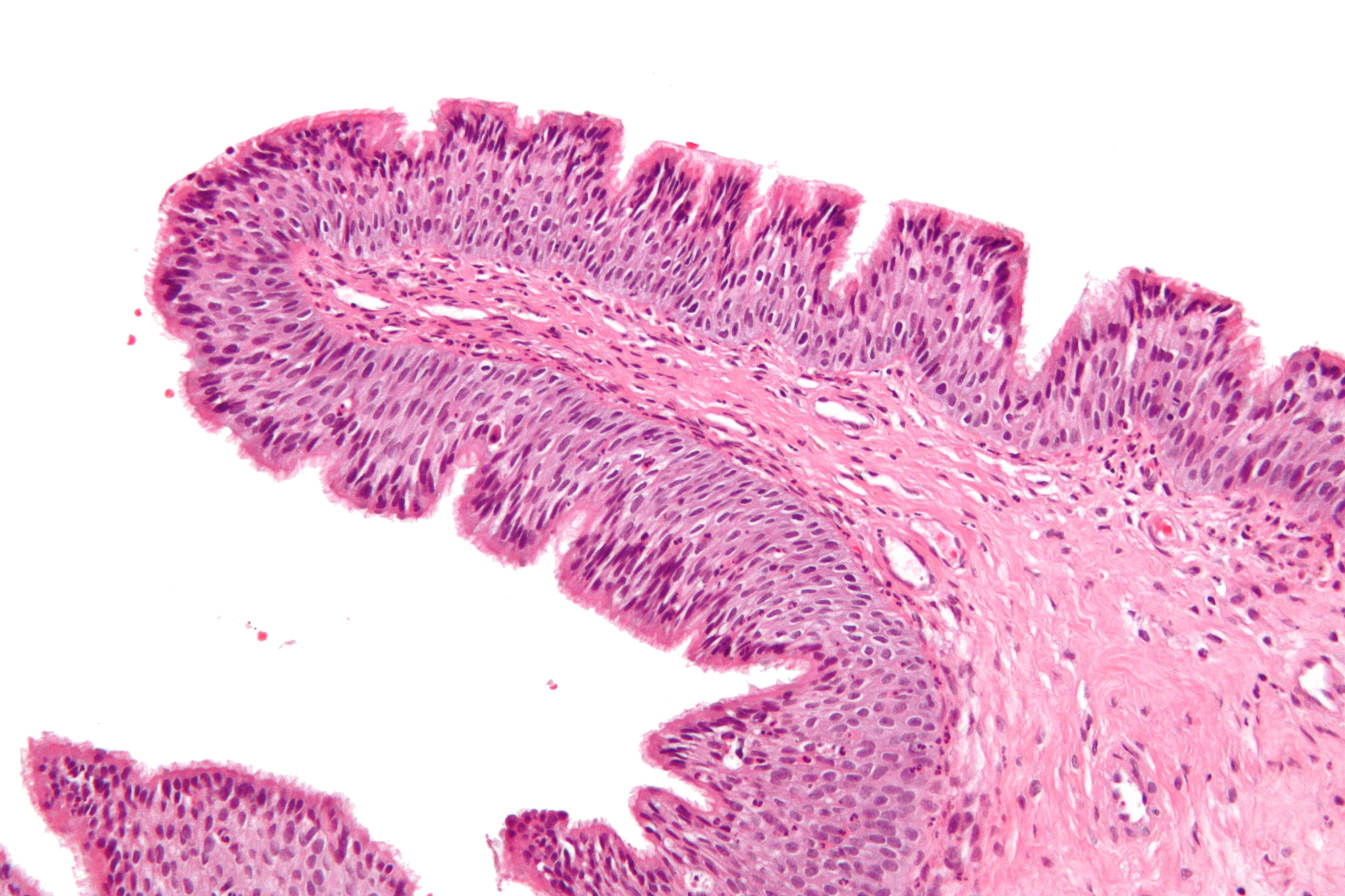 papilloma nasal polyposis)