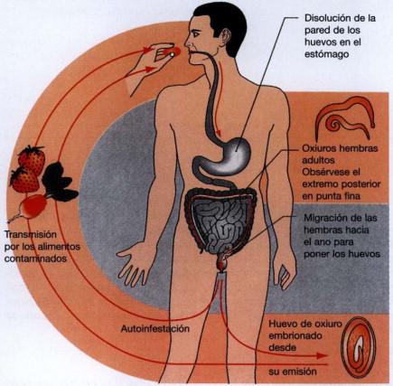 oxiuros inflamacion