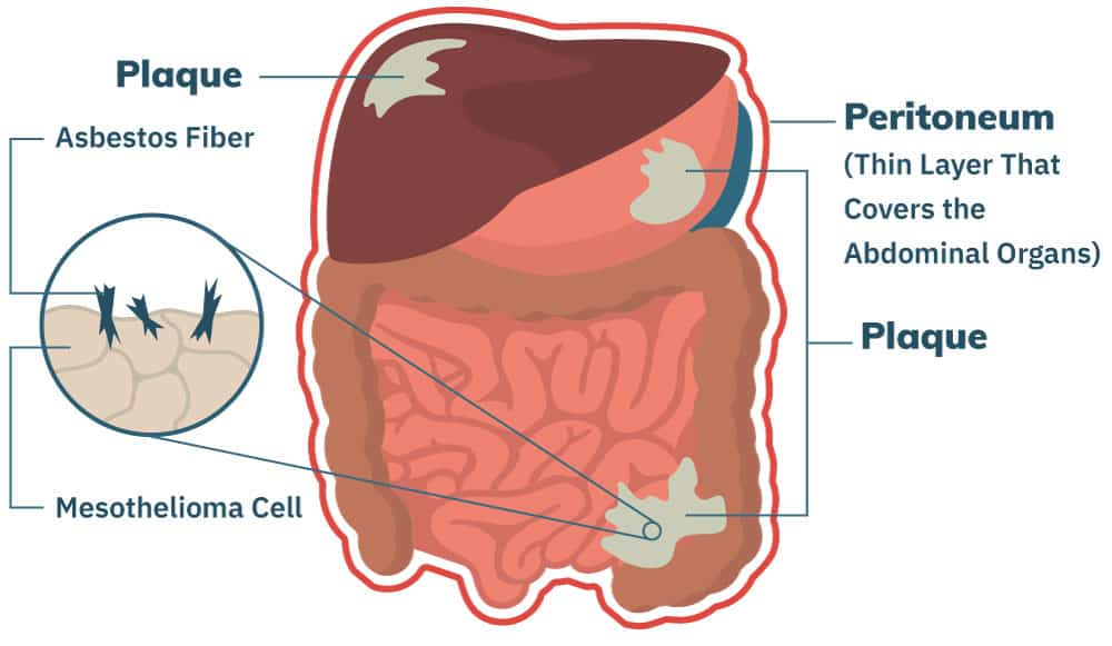 cancer of peritoneal lining)