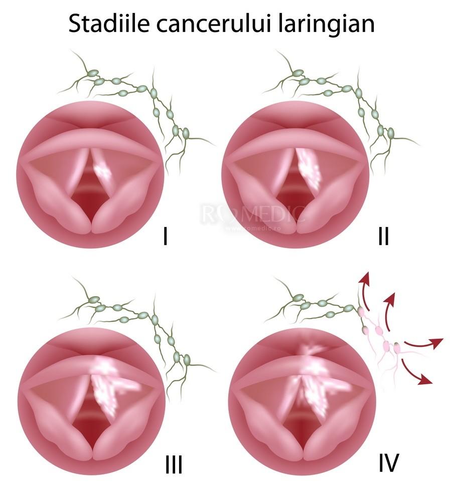 cancer laringe simptome