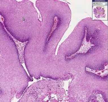 condylomata acuminata a virus)