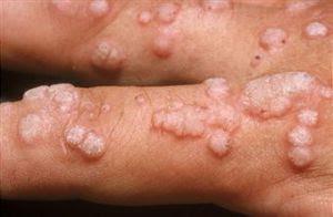 papiloma humano o herpes)