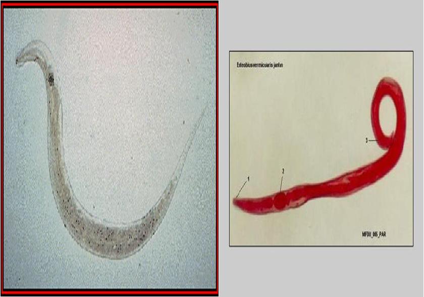 enterobius vermicularis = oxyuris vermicularis)