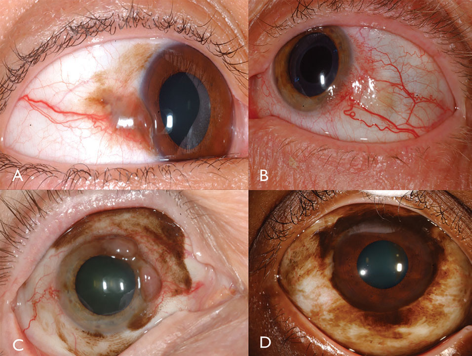 conjunctival papillomas prognosis)