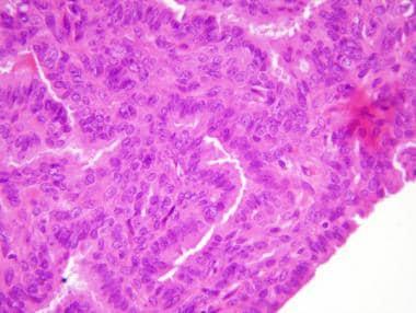 intraductal papilloma libre