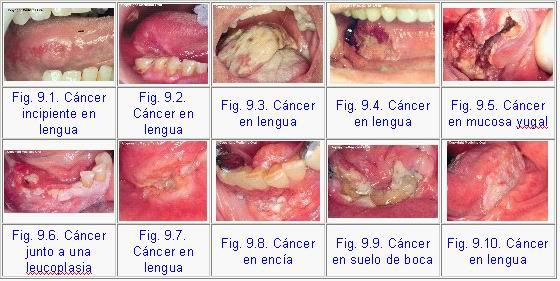 Sexul oral creste riscul de cancer la gat mai degraba decat tutunul