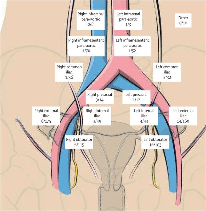 endometrial cancer lymphatic spread)