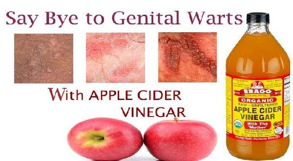 human papillomavirus infection apple cider vinegar