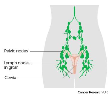 cervical cancer and bloating)