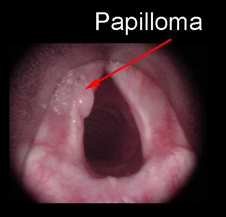 treatment for laryngeal papilloma)