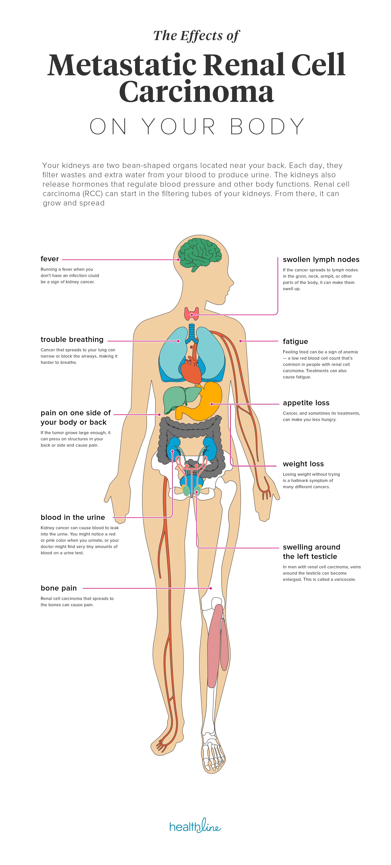 cancer metastatic fever