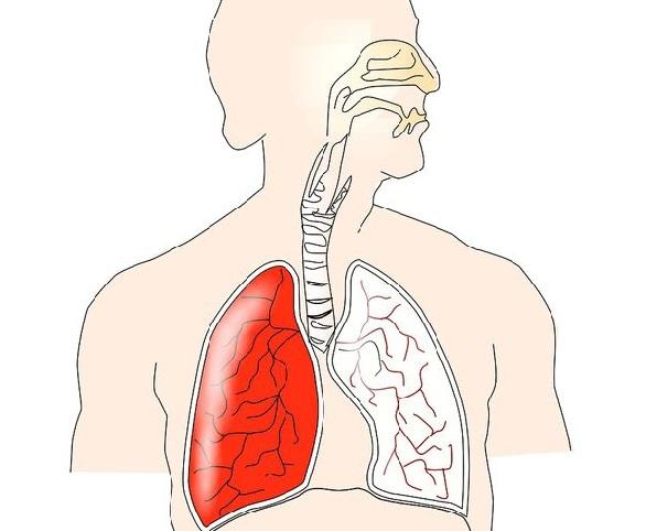 cancer scuipa sange)