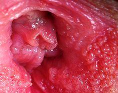 does vestibular papillomatosis come and go