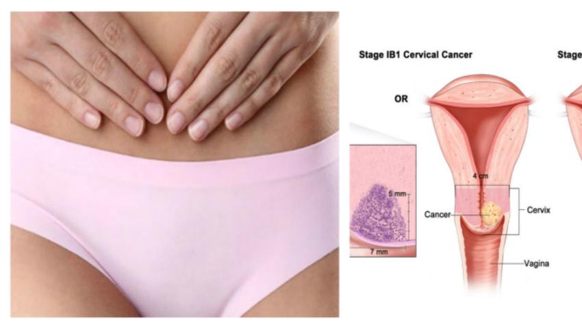 cancerul de col uterin se transmite la barbati