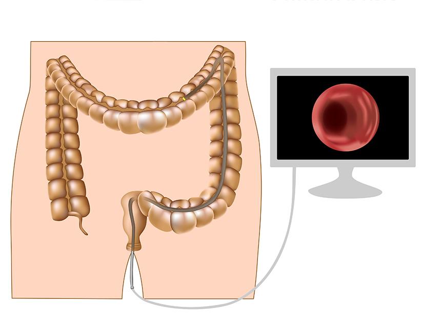 cancer de colon drept simptome)