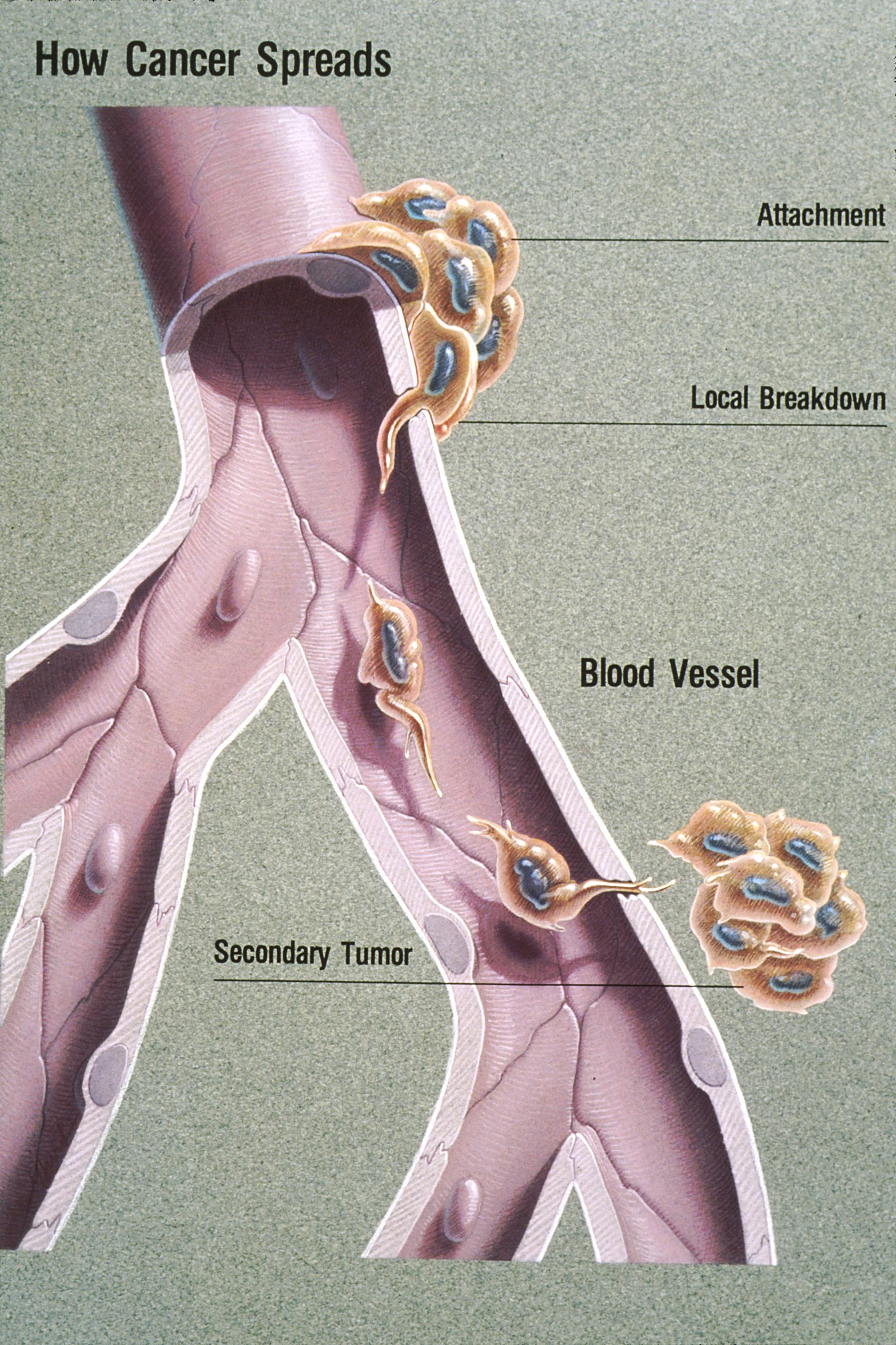 sarcoma cancer blood vessels)