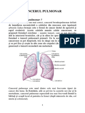 cancerul pulmonar si antibioticele que significa la palabra papiloma