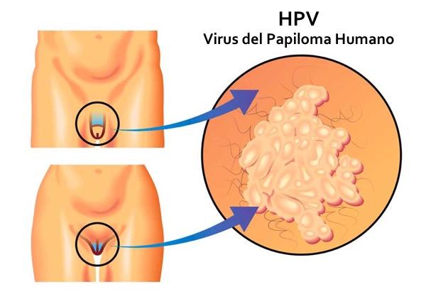 colorectal cancer 8q24 papiloma humano quien transmite