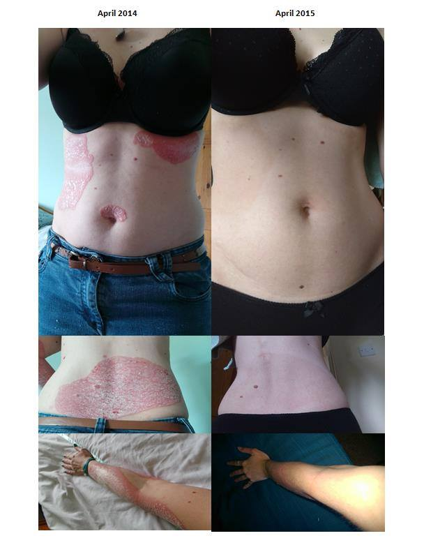 helminthic therapy psoriasis