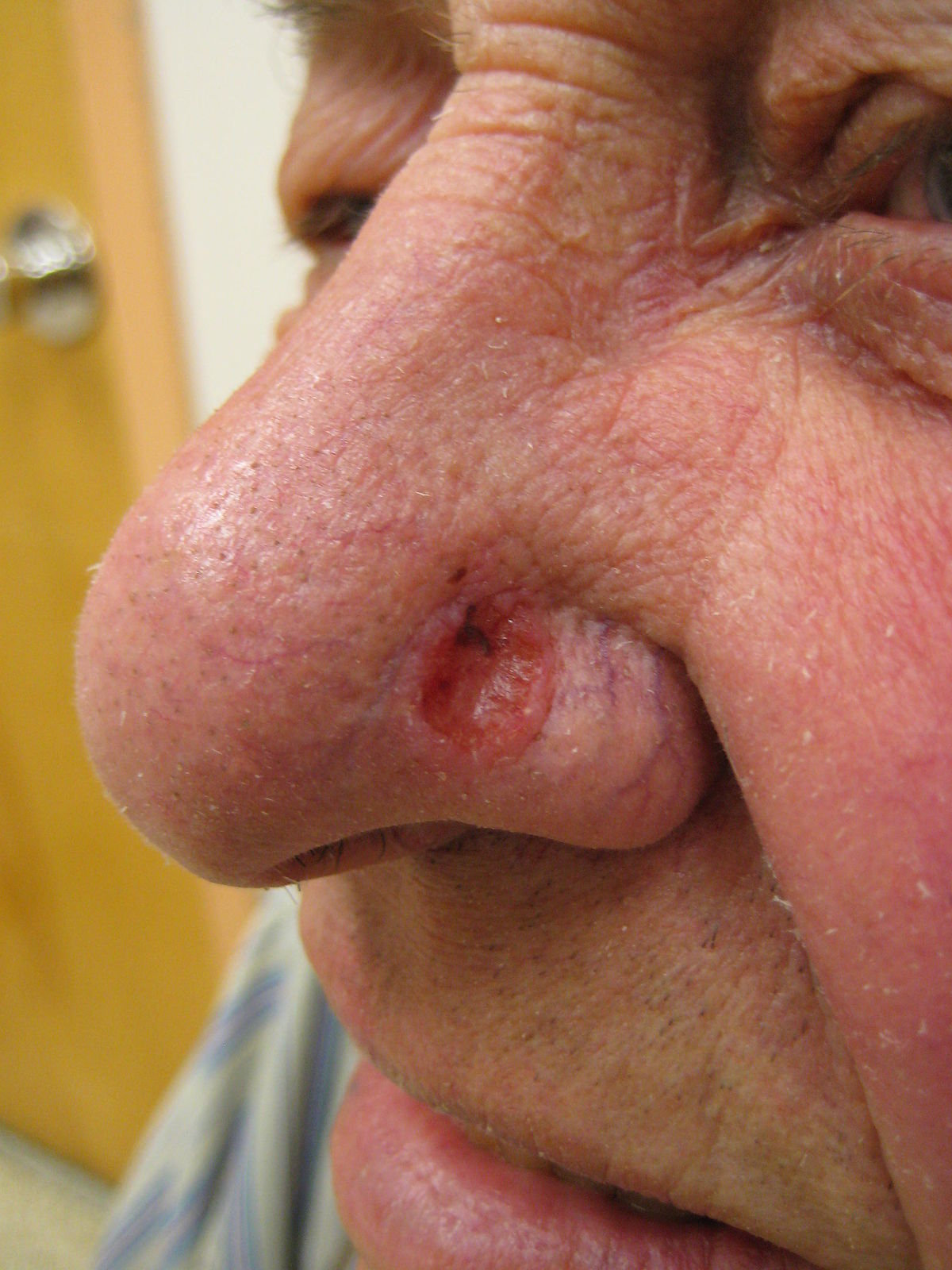 papilloma nose symptoms)