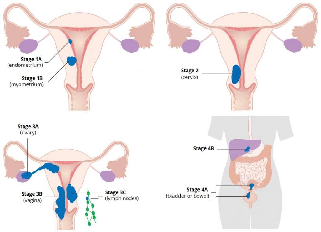 cancer endometrial figo
