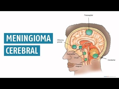 cancer cerebral meninges