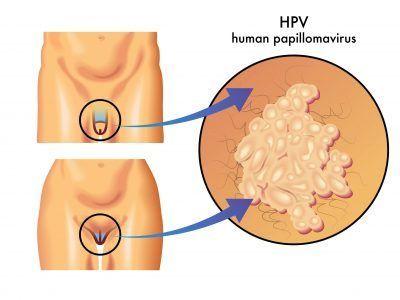 herpes da papilloma virus)