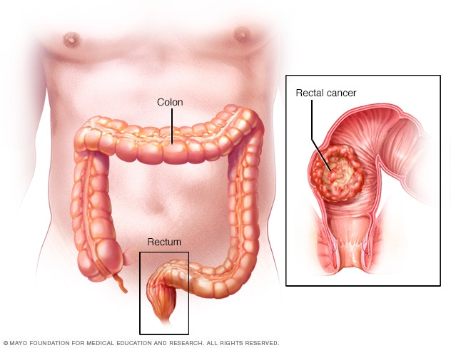 rectal cancer what is it)