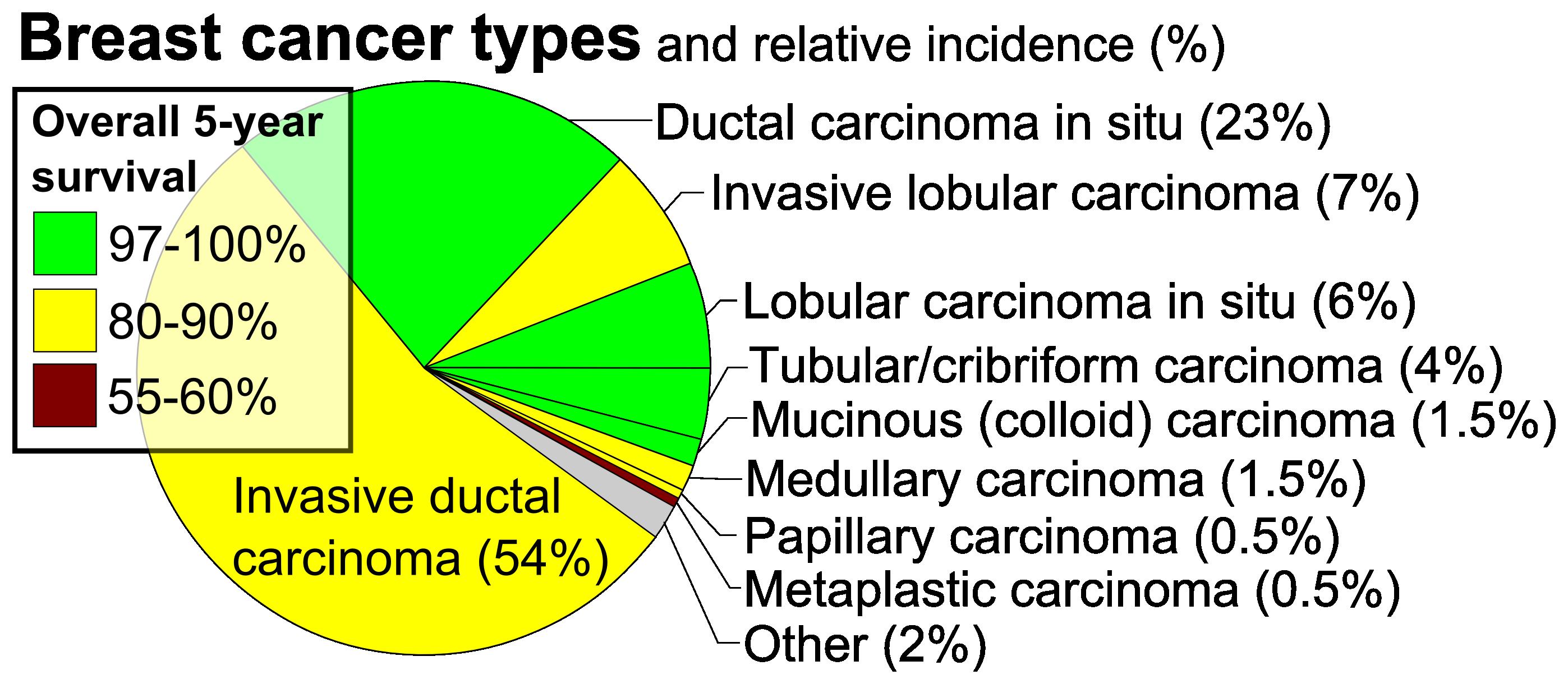 ductal papillomatosis icd 10