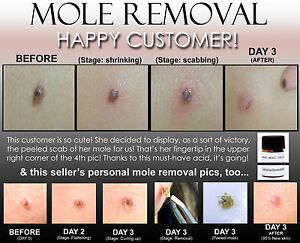 hpv removal scars