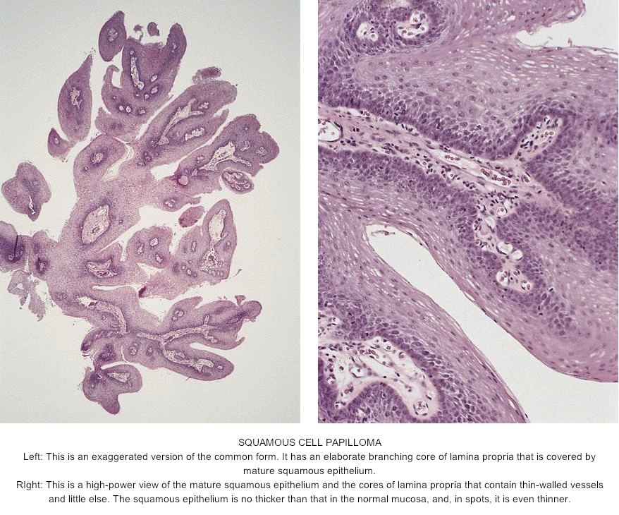 skin papilloma histopathology
