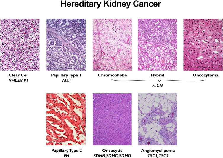 genetic cancer of the kidney
